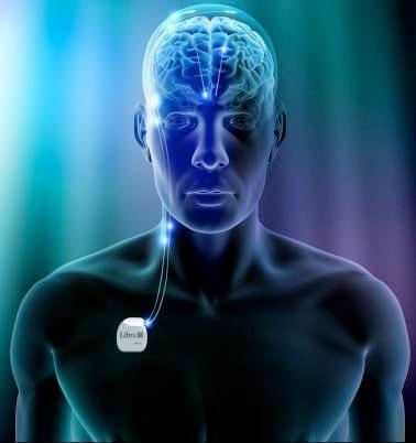 Deep brain stimulation bij epilepsie