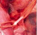 Nervus Phrenicus Stimulatie 2a