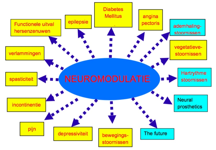 neuromodulatie foundation plan